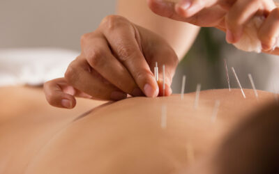 Is Acupuncture Beneficial For Stroke Rehabilitation?